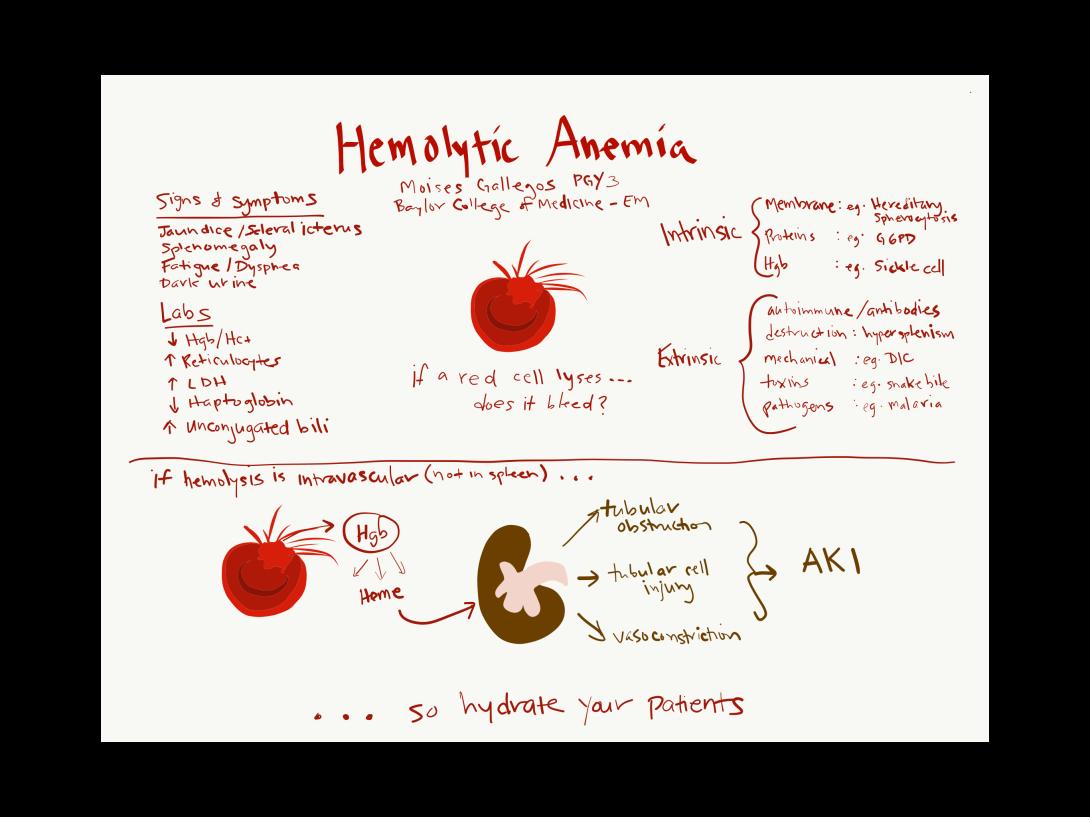 HemolyticAnemia