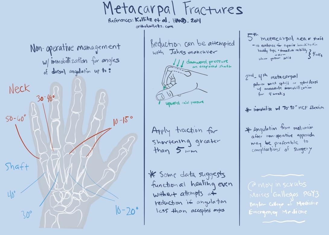 MetacarpalFractures